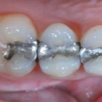 Esztétikai fogászat, amalgám csere előtt