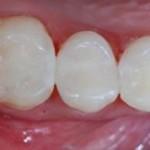 Esztétikai fogászat, amalgám csere után