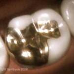 Esztétika fogászat, arany outlay