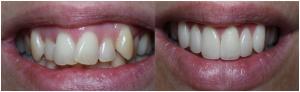 Esztétikai fogászat, héj