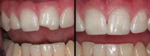Esztétikai fogászat, letört héj