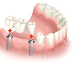 Híd fogpótlás, implantátum