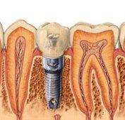 fogászati implantáció fogbeültetés, csavaros