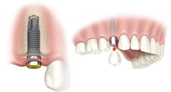 fogászati implantáció fogbeültetés, implantátum