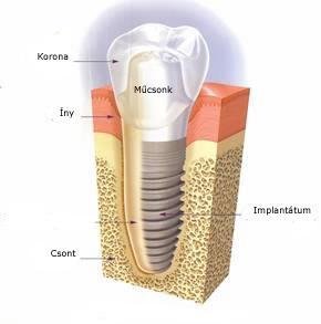 fogászati implantáció fogbeültetés