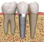fogászati implantáció fogbeültetés, hagyományos