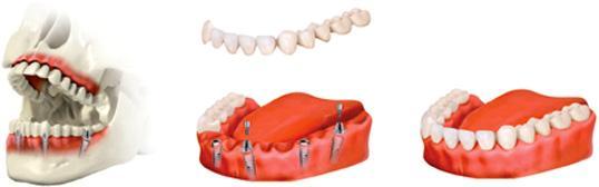 fogászati implantáció fogbeültetés, teljes fogsor