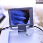 Diagnosztika, kézi röntgen
