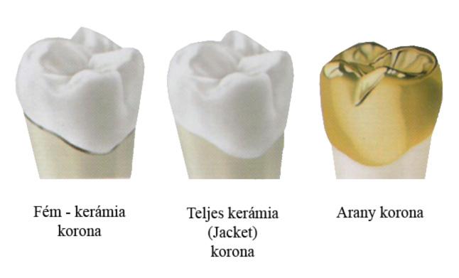 Korona típusok