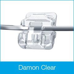 Fogszabályozás, Damon clear