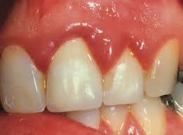 Kismama fogászat, terhességi terhességi gingivitis